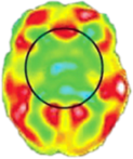 PET CT Scan of the Brain 6 months