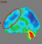 PET CT Scan of the brain after Stem cell therapy