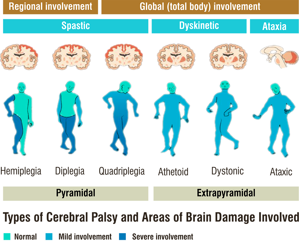 Type of Cerebral Palsy