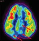 PET CT Scan of the brain before stem cell therapy